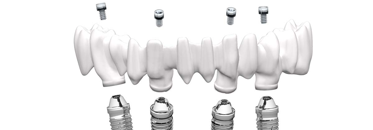 Individuelle Implantatlösung