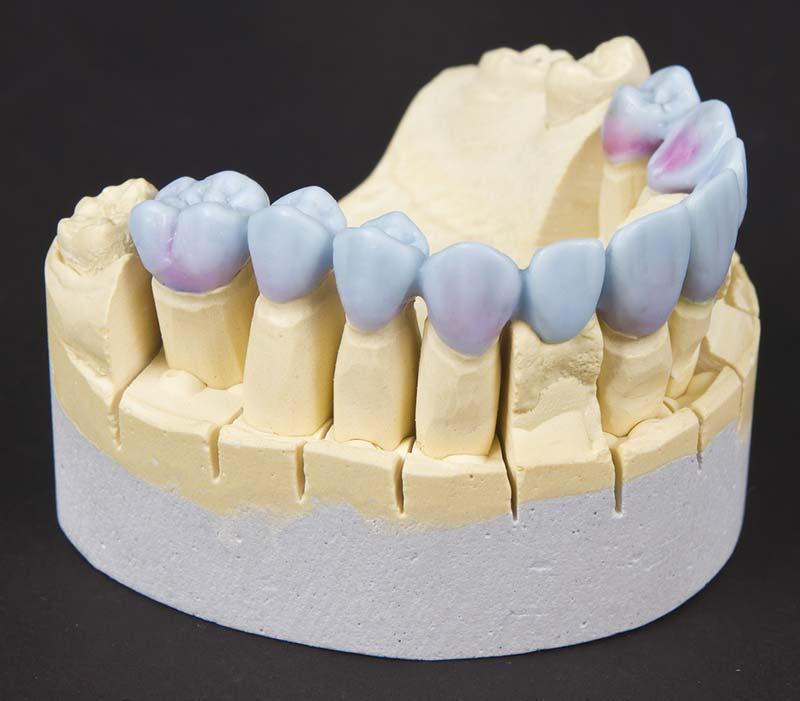 Wachsmodell von Zähnen